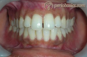 Normal contour of gingiva