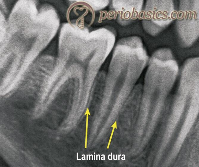 Lamina Dura