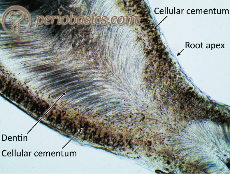 The ground section of tooth showing cellular cementum in the apical area of the root