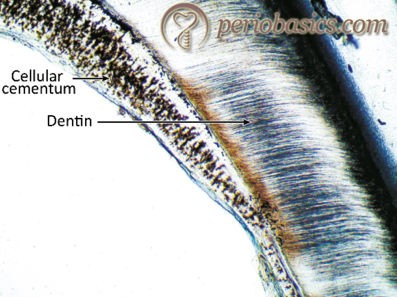 The ground section of tooth showing cellular cementum in the furcation area