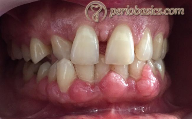 Amlodipine induced gingival enlargement
