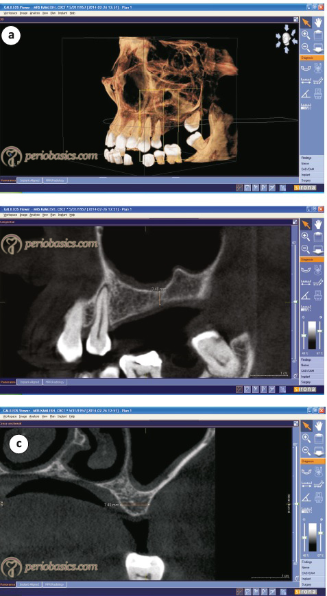 CBCT image of the maxilla where implants have been planned