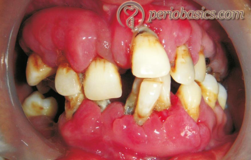 Combined gingival enlargement