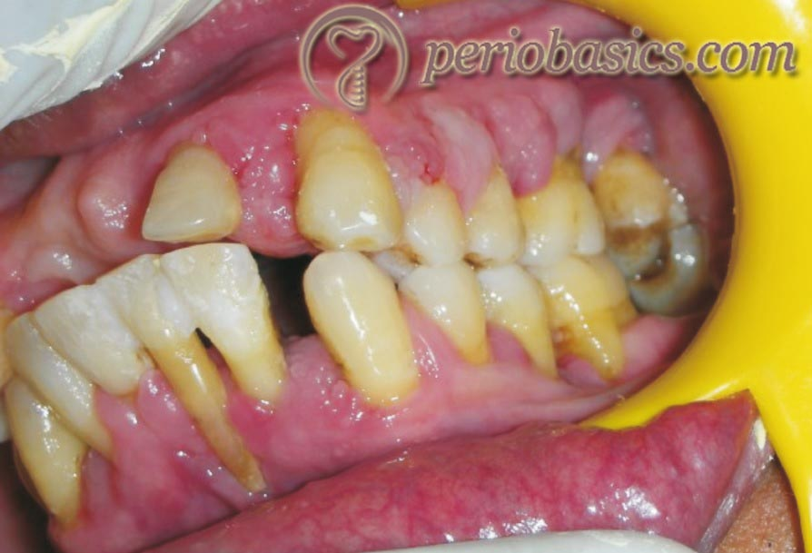 Cyclosporine induced gingival enlargement