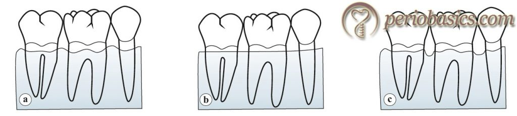 Diagrammatic representation of positive (a), flat (b) and negative (c) bone architecture