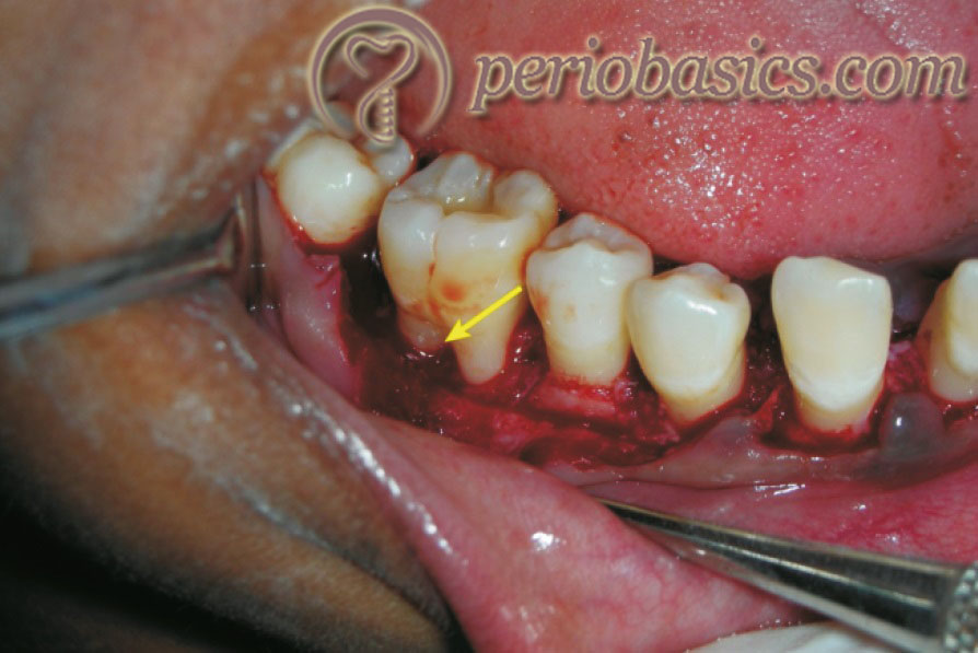 Furcation involvement due to the extension of periodontitis in the furcation area