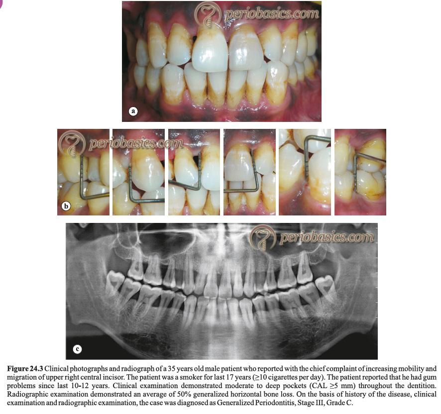 Generalized periodontitis Stage III Grade C