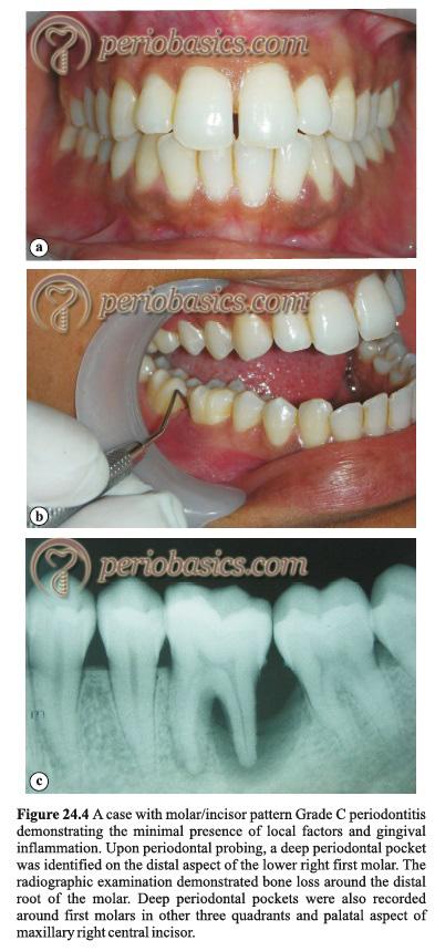 Grade C Periodontitis with molar incisor pattern