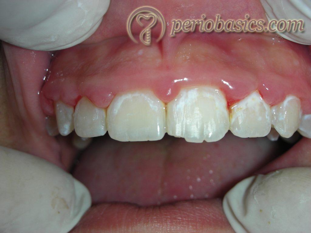 Inflammatory gingival enlargement