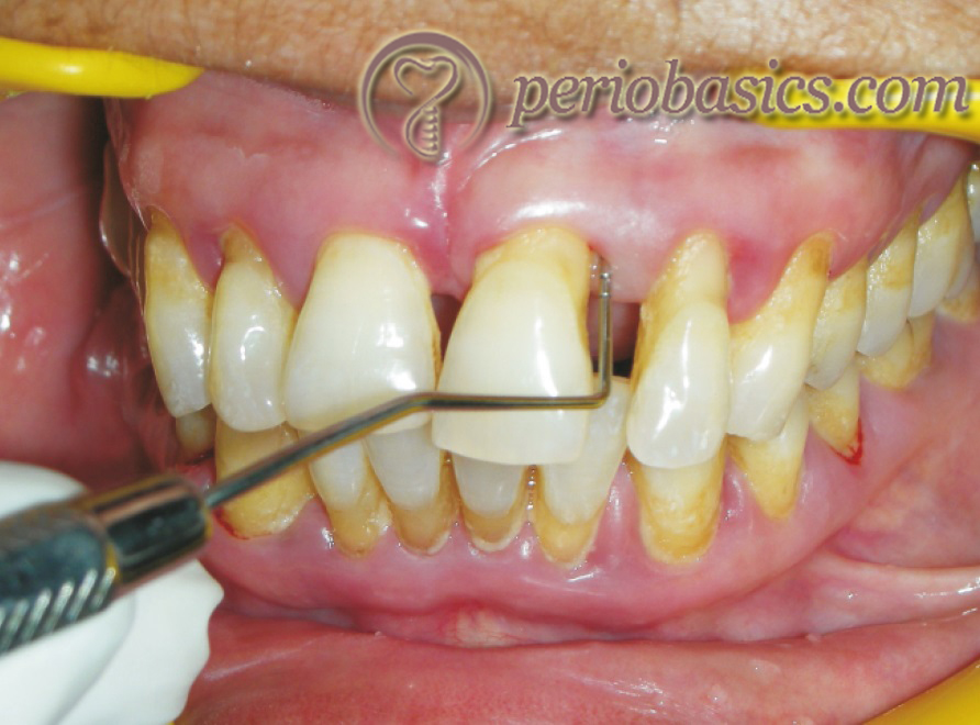 Periodontal probing demonstrating periodontal pocket