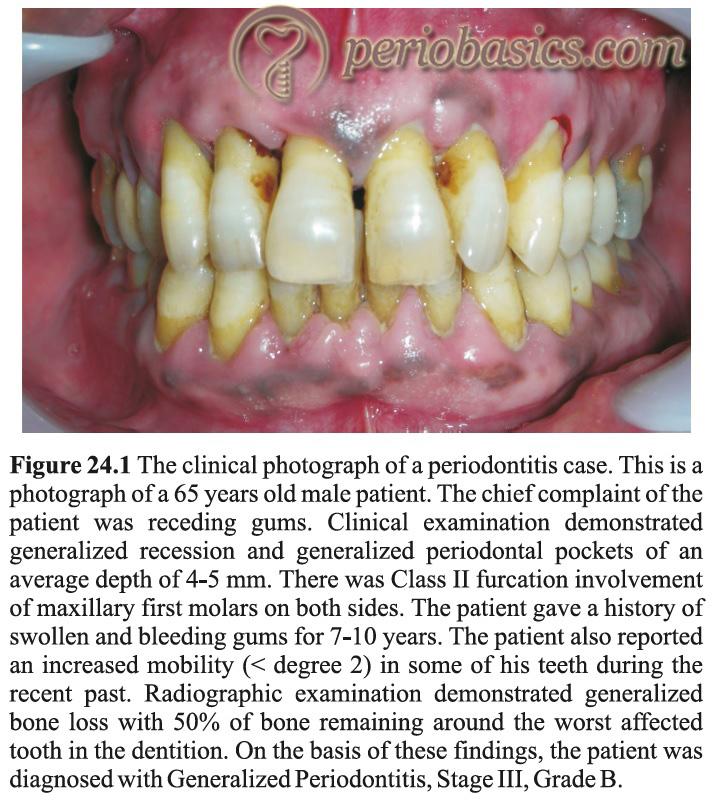 Generalized periodontitis Stage III Grade B