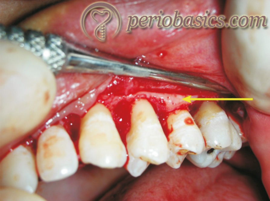 The bony ledge can be seen on the buccal aspect of the second premolar.