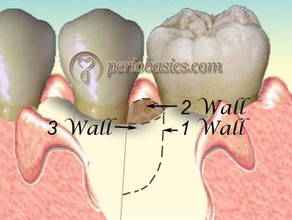 Three wall defect