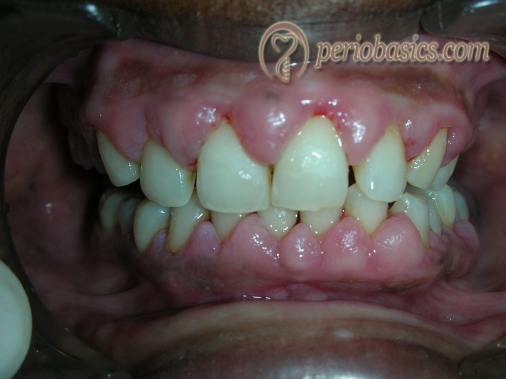 Valproic acid induced gingival enlargement