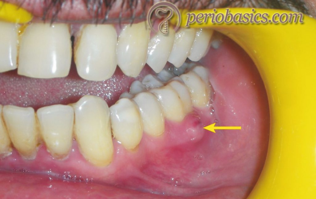 Acute periodontal abscess on the lateral aspect of first mandibular molar with gingiva appearing red and swollen.