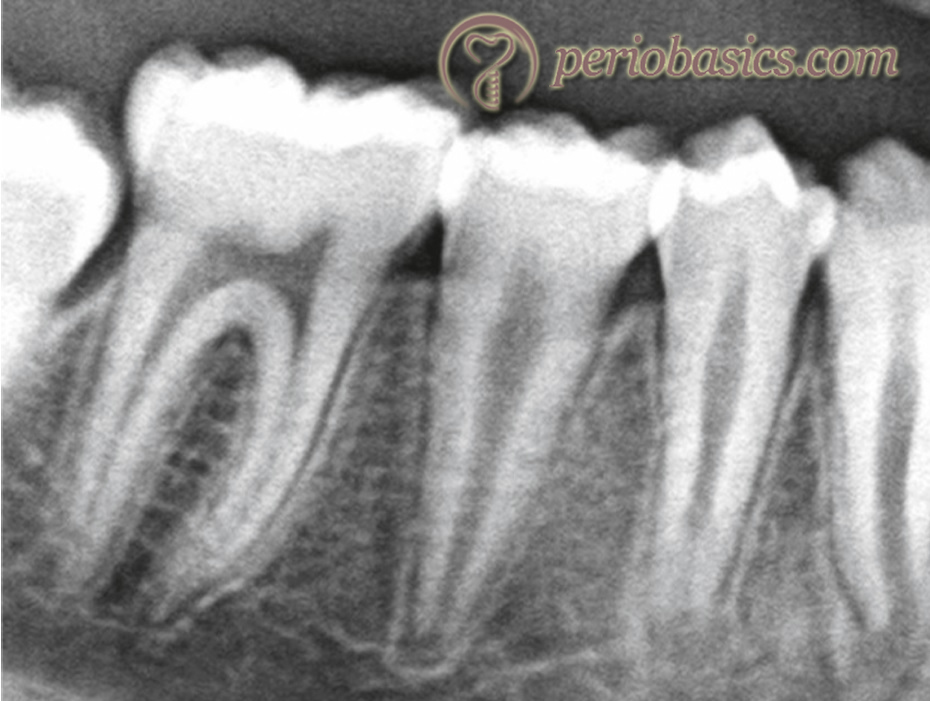 An intraoral periapical radiograph (IOPA) demonstrating the periapical areas of the teeth