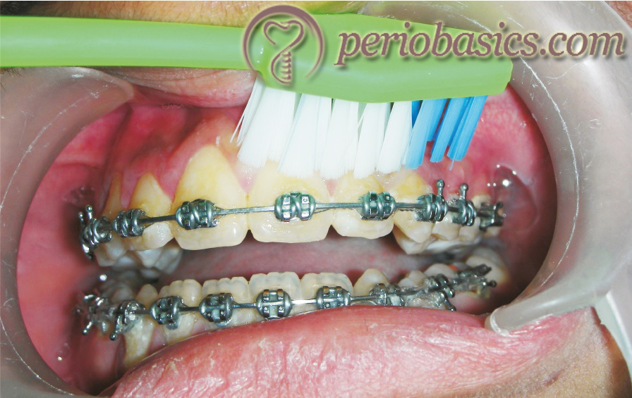 Charter's brushing technique where the brush is placed at an angle of 45⁰ to the long axis of the teeth in an occlusal or incisal direction.