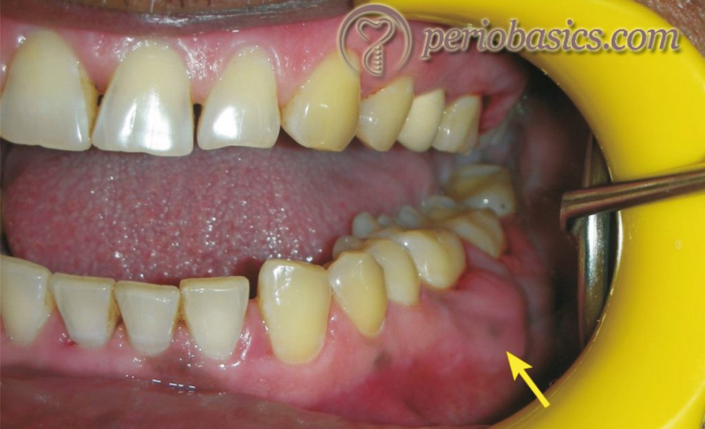 Chronic periodontal abscess on the lateral aspect of first mandibular molar demonstrating fibrotic swollen gingiva.