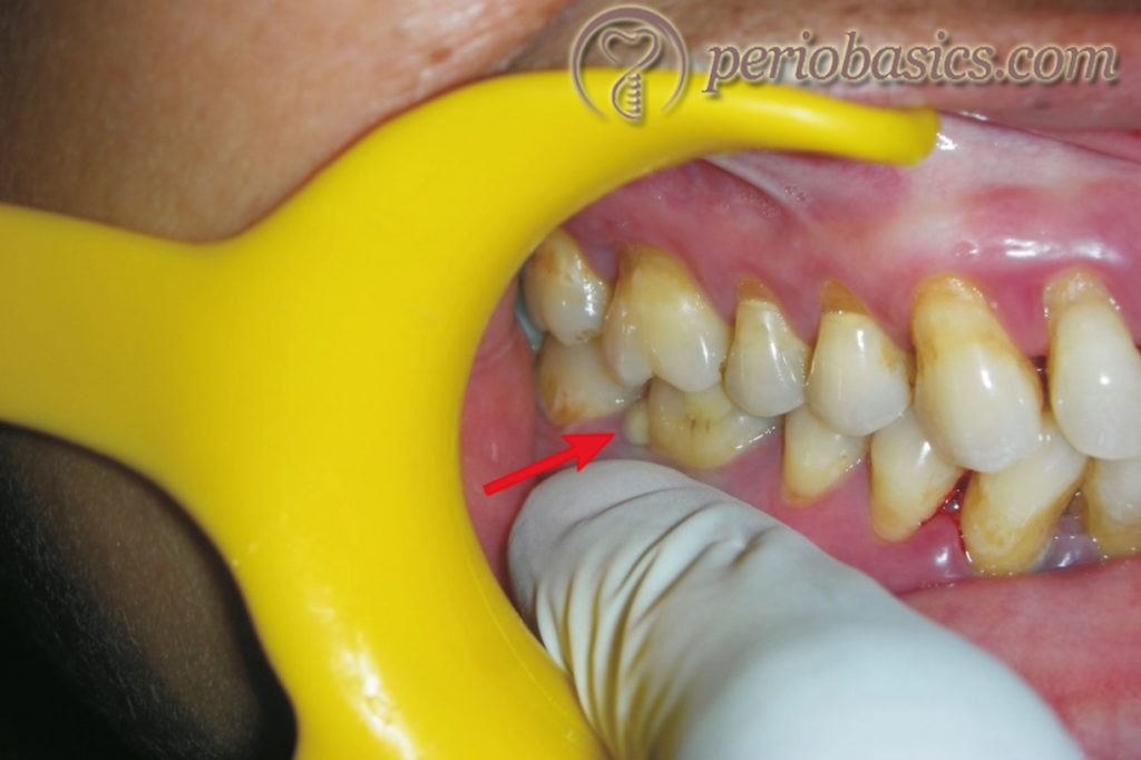 Clinical photograph of a patient with periodontal abscess.