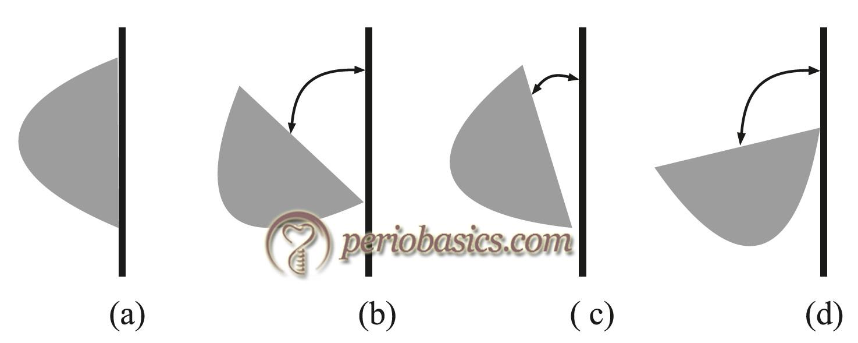 Diagrammatic representation of instrument activation.