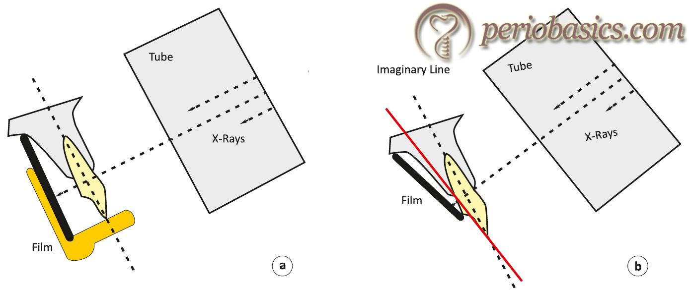 Diagrammatic representation of principle of paralleling (a) and bisecting angle (b) radiographic technique.