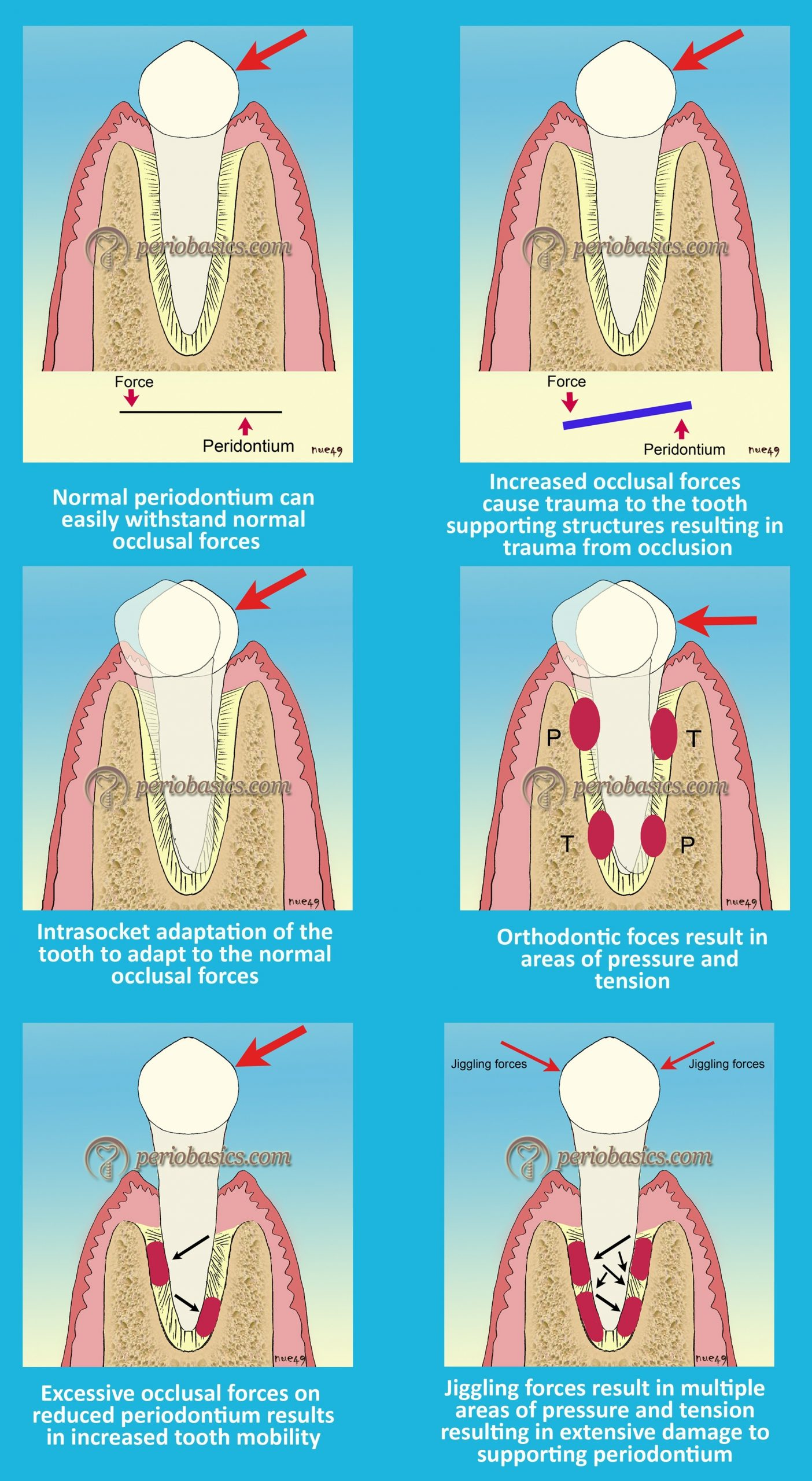 Effect of excessive occlusal forces on periodontium
