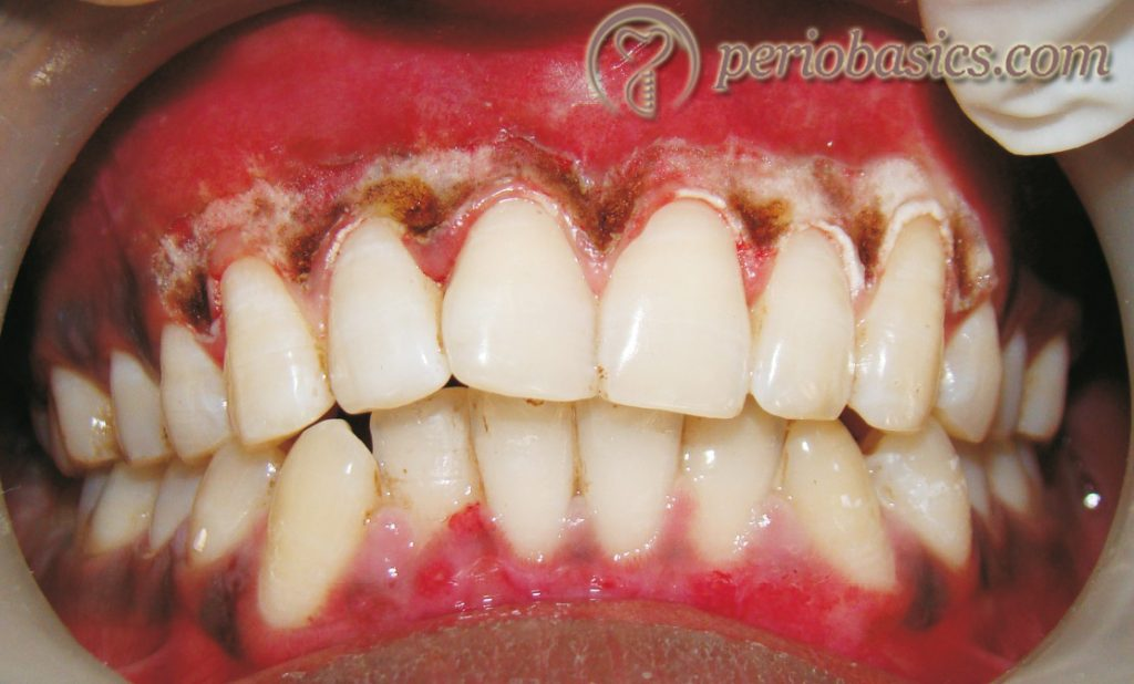 Gingival depigmentation with laser