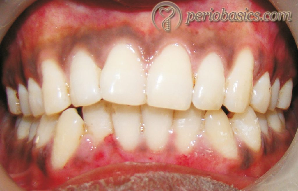 Gingival pigmentation