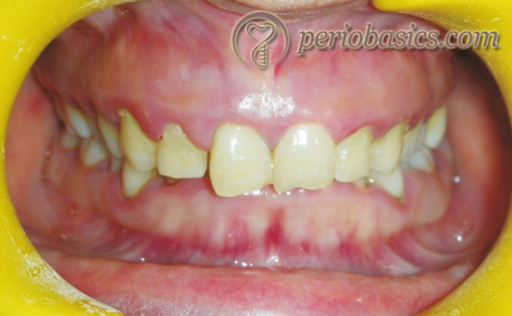 Gingivitis caused due to mouth breathing