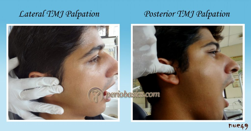 Lateral and Posterior palpation of TMJ