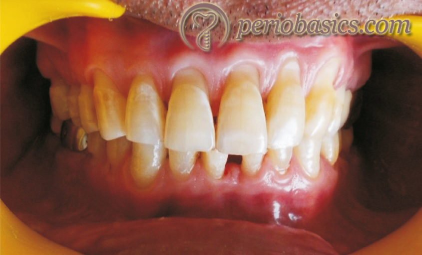 Loss of tooth structure due to faulty brushing technique