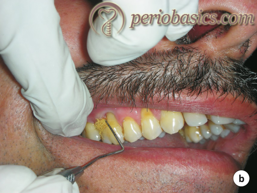 Placement of tetracycline fibers in periodontal pocket
