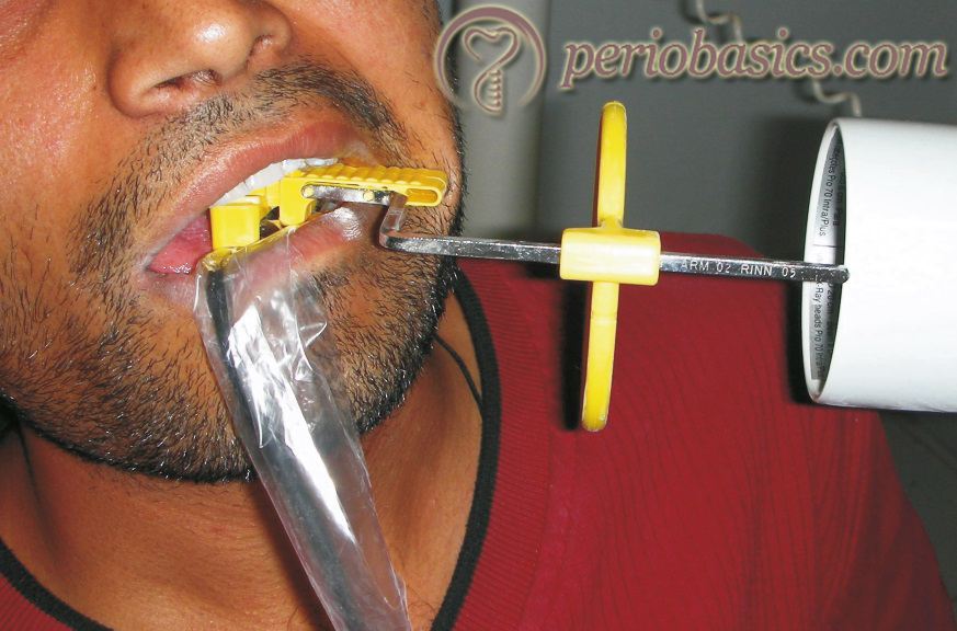 Positioning of the x-ray sensor holder in the oral cavity of the patient.