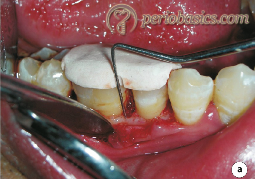 Radiopaque stent placed on teeth