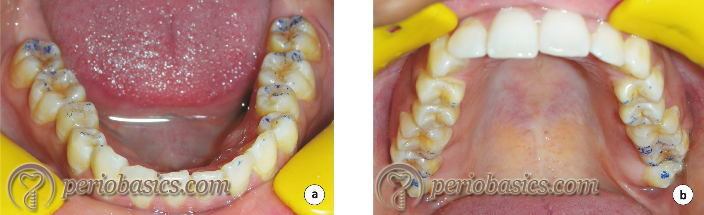 Recording of occlusal interferences in centric relation to centric occlusion position.