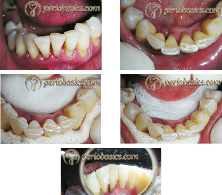 Stabilization of teeth with composite resin splint with fiber meshwork