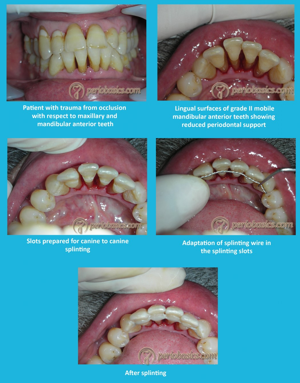 Stabilization of teeth with splinting using wire splint and composite resin.