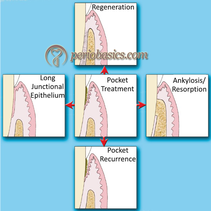 The possible outcomes of periodontal therapy.