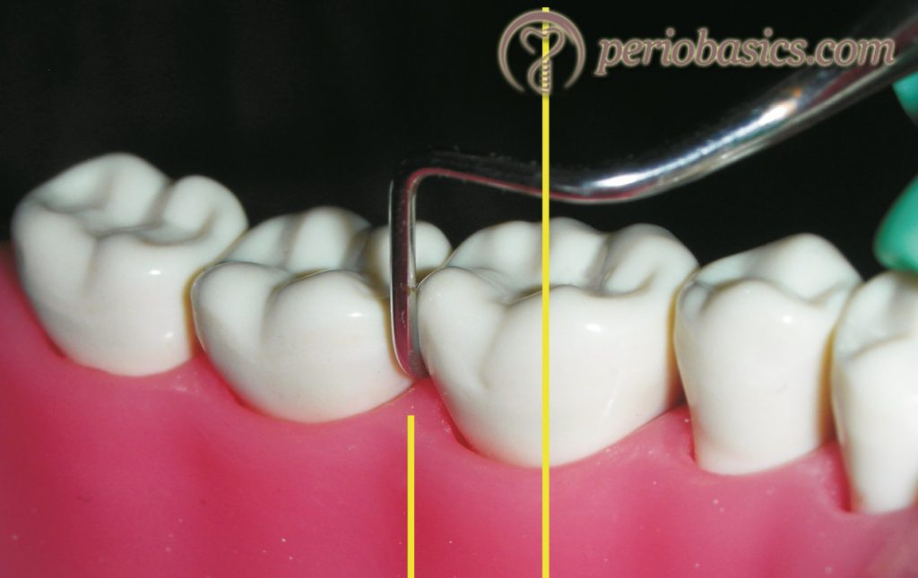While engaging the instrument on the root surface, the lower shank of the instrument is parallel to the long axis of the tooth.