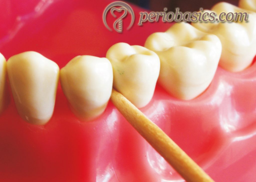 Wooden toothpicks.