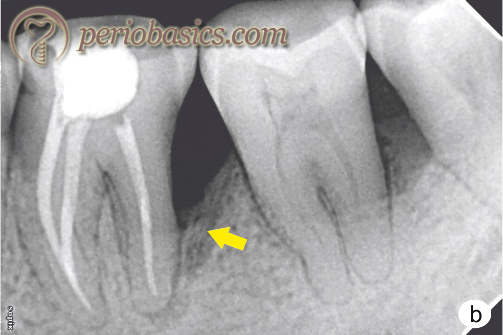 An appropriately done endodontic and periodontal treatment in a primary periodontal and secondary endodontic lesion