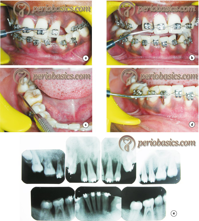 An inappropriately done orthodontic treatment of periodontally compromised patient.