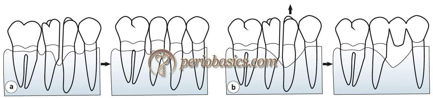 Bicuspidization (a) and hemisectioning (b) prodedures