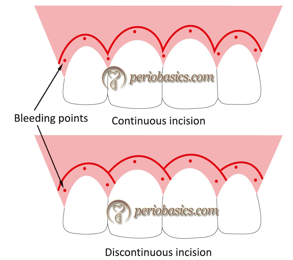 Diagrammatic representation of continuous and discontinuous incisions used in gingivectomy.