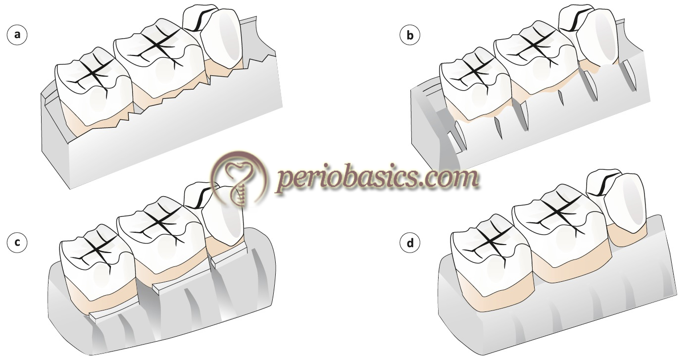Digrammatic representation of steps in resective osseous surgery