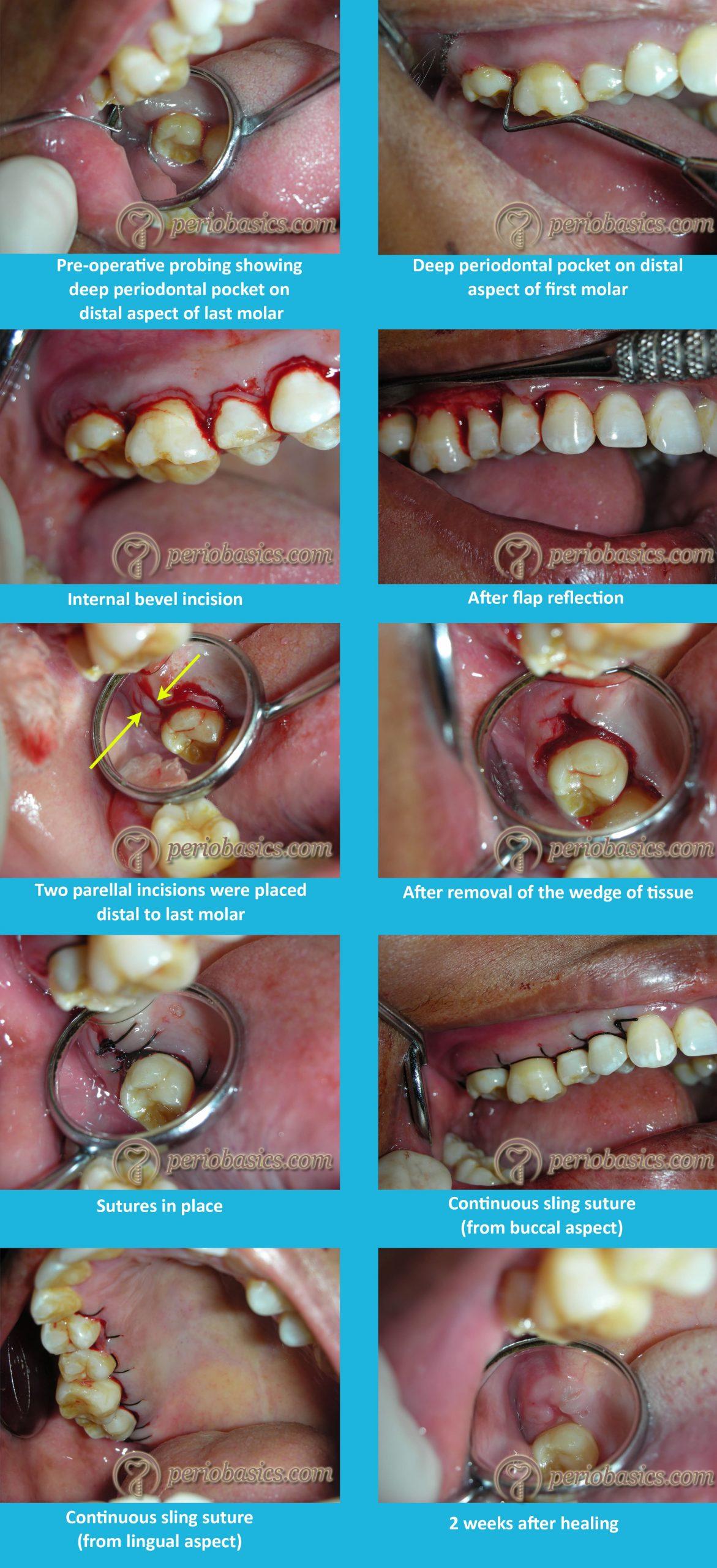 Distal molar surgery