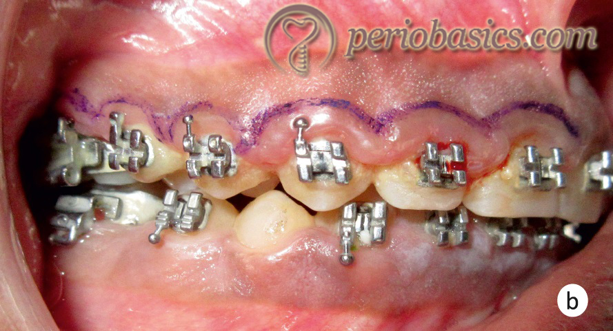 Gingivectomy case b