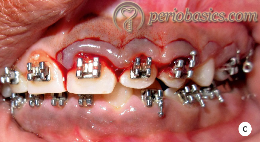 Gingivectomy case c