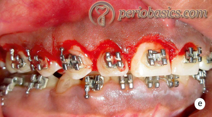 Gingivectomy case e