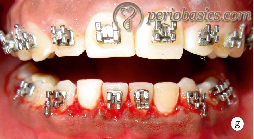 Gingivectomy case g